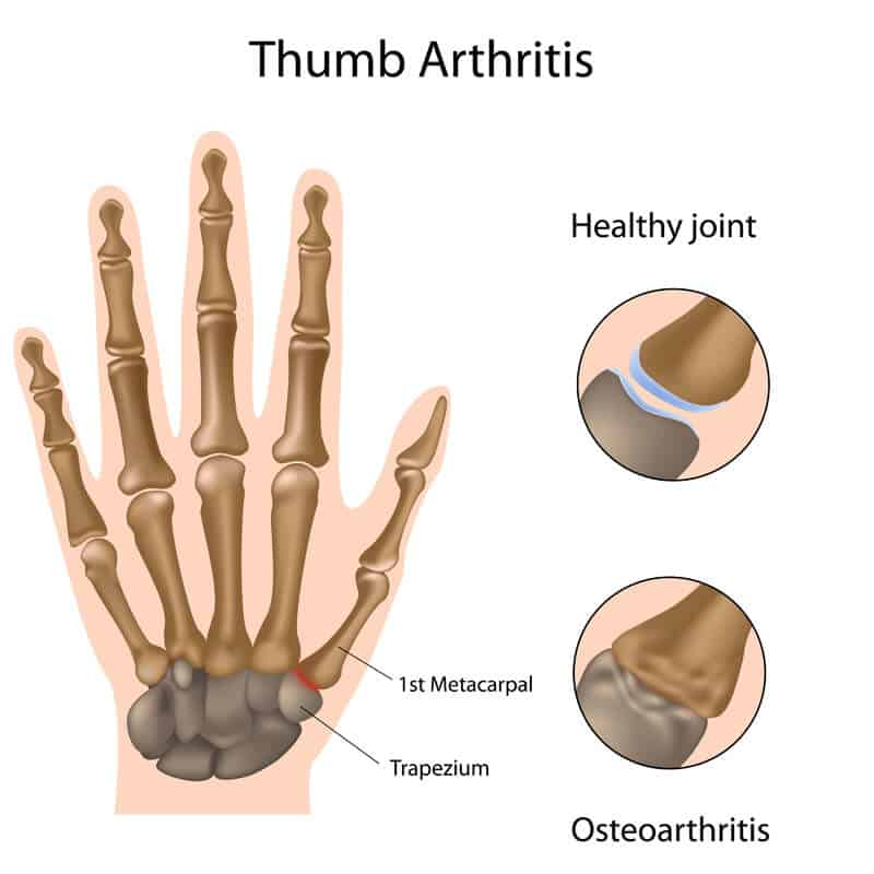 Thumb Arthritis Anatomy Diagram