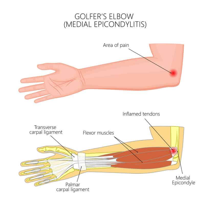 Golfer's Elbow Infographics Diagram