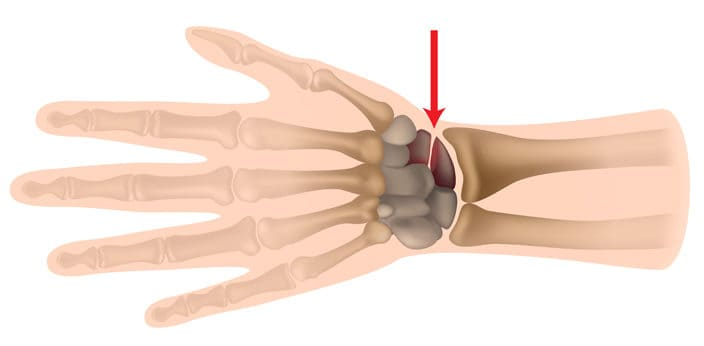 Scaphoid Fracture Infographics Diagram