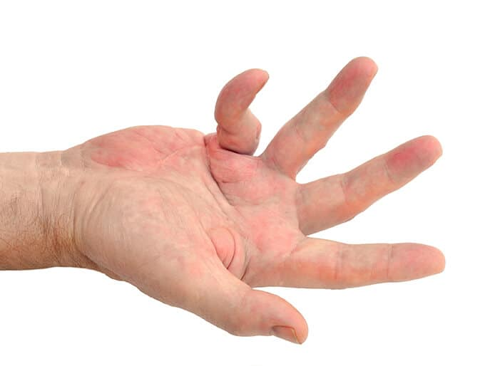 hand with dupuytrens contracture