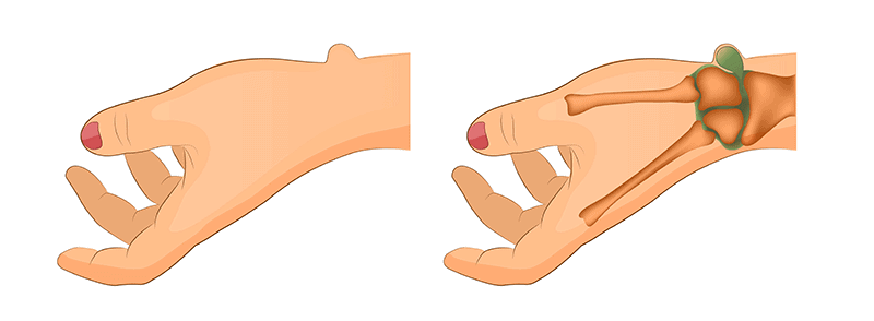 Ganglion Cyst Infographics Diagram