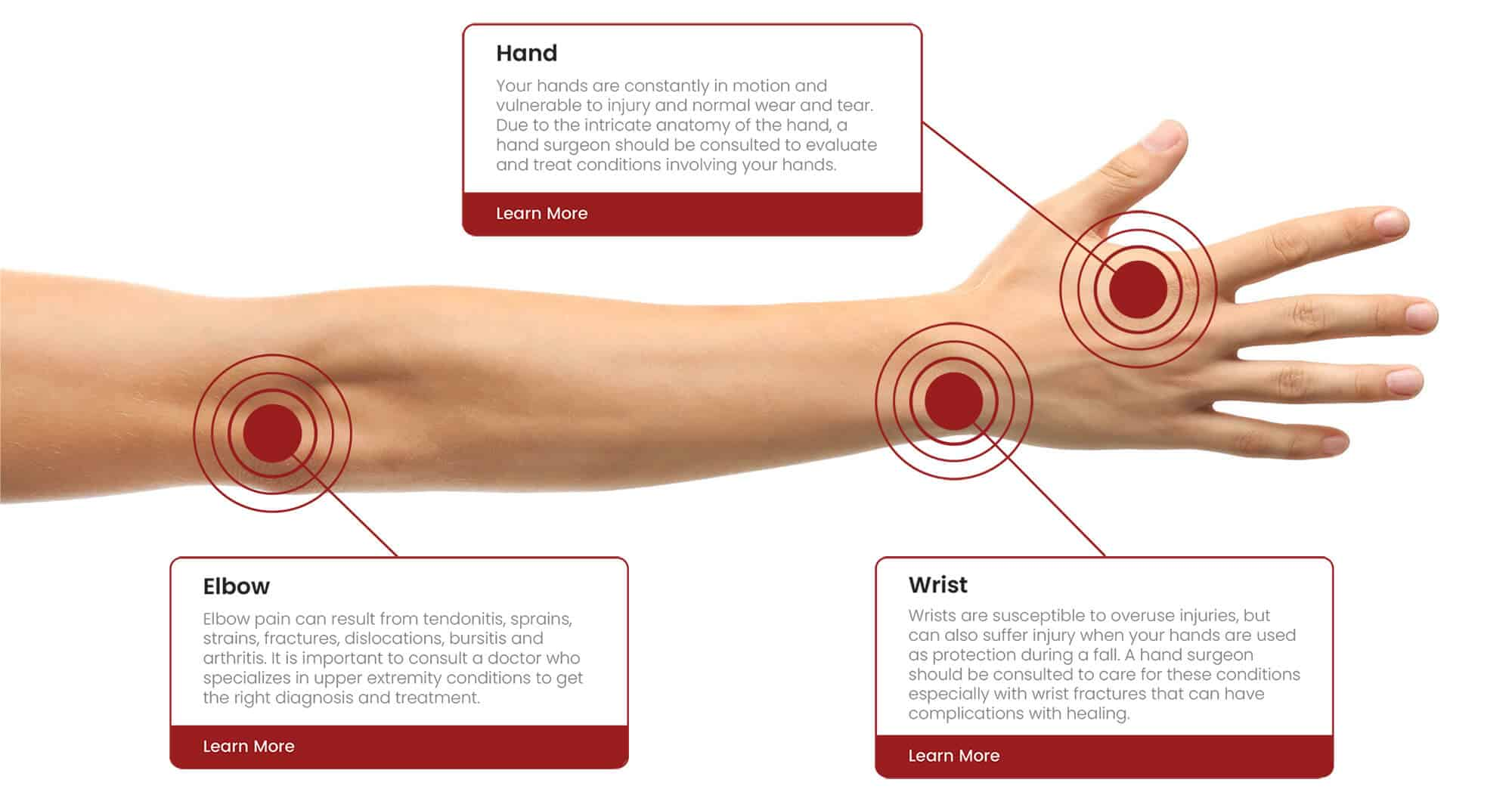 Infographic for the arm showing the hand, wrist, and elbow and how they may be affected by pain or injury