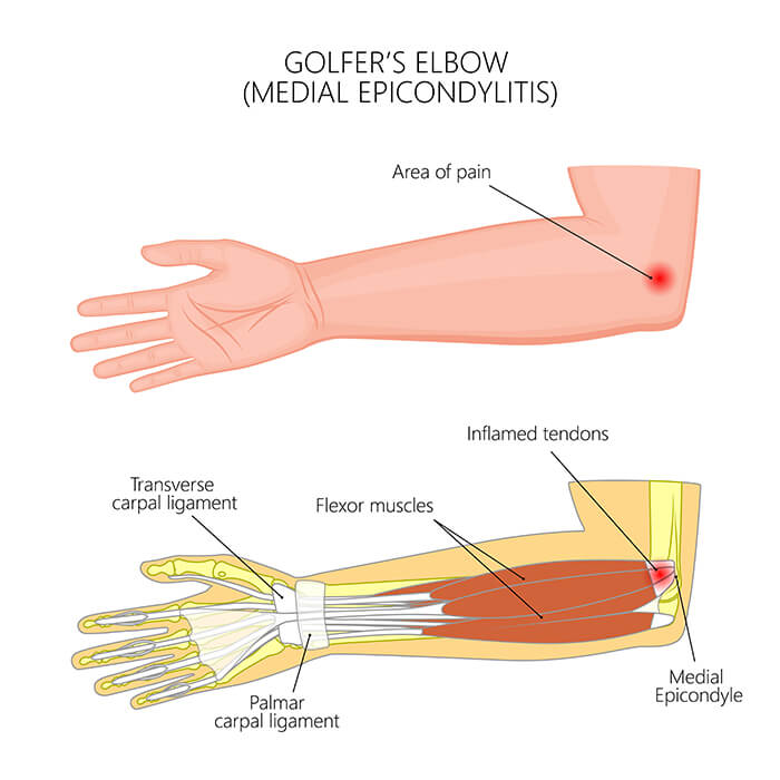 Golfer's Elbow anatomical view